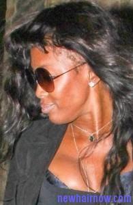 receding hairline6