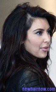 lupus hair5