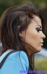 lupus hair7